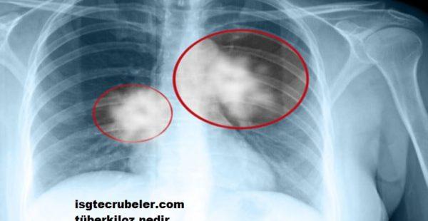 Tüberküloz nedir nasıl bulaşır.